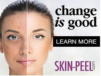 skinpeelchange is good